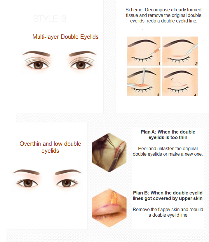 eyelid revision