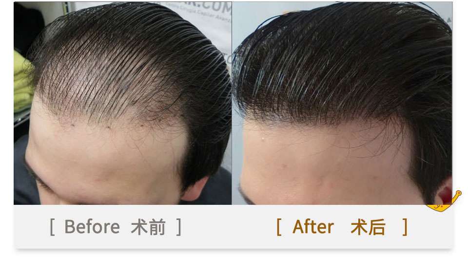 hairline transplant for men in china