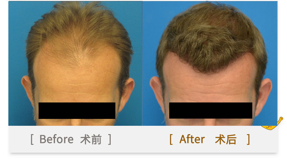 hair transplant in guangzhou china for girls