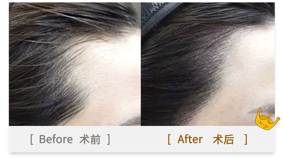hair tranplant effect before and after