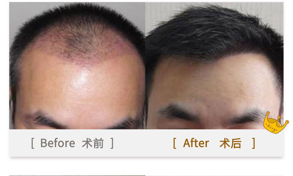 hanfei hair plant on men's head top before & after