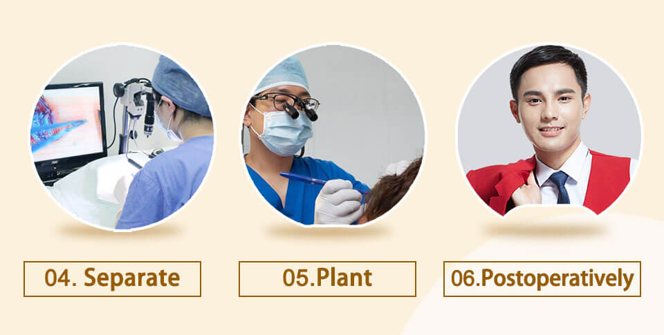 seperate, plant and postoperatively