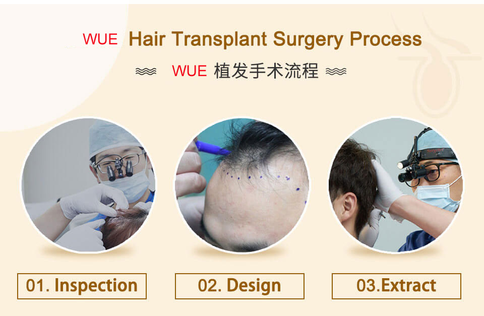 WUE hair transplant process