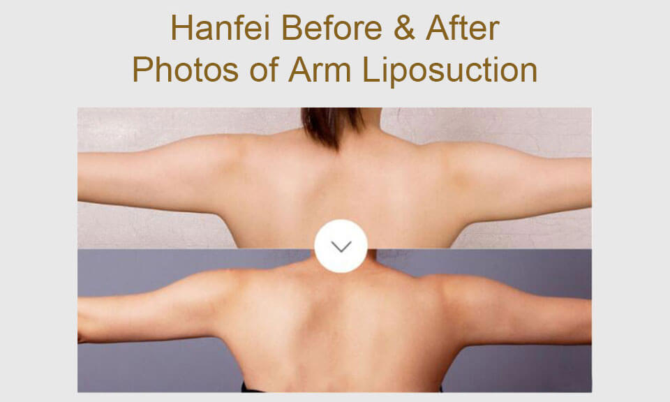 hanfei arms liposuction before & after